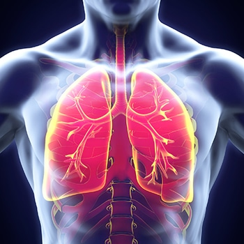 Bringing Health Care Providers Together to Diagnose and Treat Idiopathic Pulmonary Fibrosis: A Patient Simulation