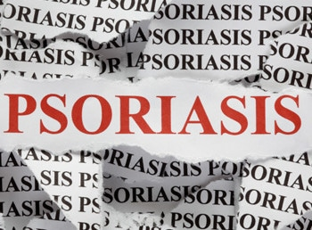 Causes for Loss of Effectiveness of Psoriasis Agents