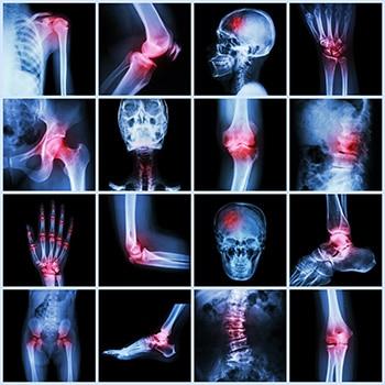 Rheumatology Continuing Education
