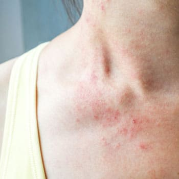 Atopic Dermatitis: You Can't Improve What You Don't Measure