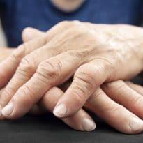 Psoriatic Arthritis Continuing Education