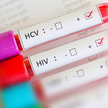 Overcoming Challenges in HIV and HCV Testing and Linkage to Care