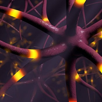 Current and Emerging Therapies for Schizophrenia: How MOA Affects Clinical Outcomes