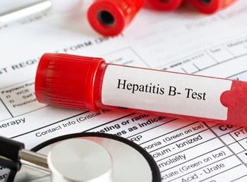 What to Expect from Your Hepatitis B Treatment