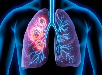 Live Webcast:The Role of Antibody Drug Conjugates in Advanced Non-Small Cell Lung Cancer: Guidance for Today and the Path Forward