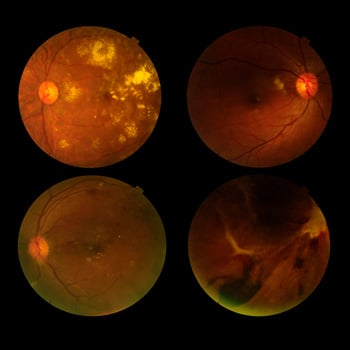 Practical Management of Inherited Retinal Disorders