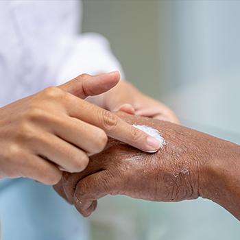 Defining Health Care Disparities in Atopic Dermatitis Care